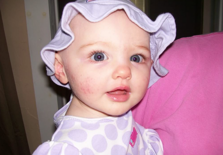 18 Ways to Get Rid of Baby Acne Naturally