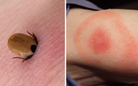 How To Recognize INFECTED Tick Bites And What You Can Do Immediately