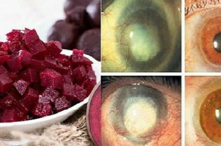 3-Ingredient Mixture Improves Vision and Cleanses Fat from the Liver